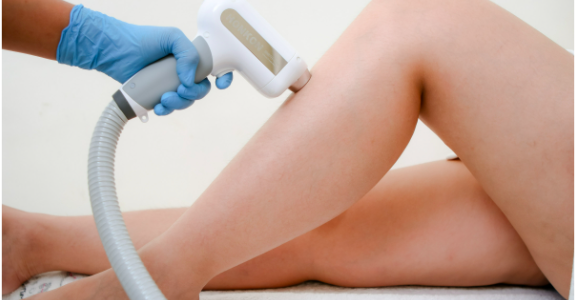 Everything you need to know about IPL treatment in Singapore